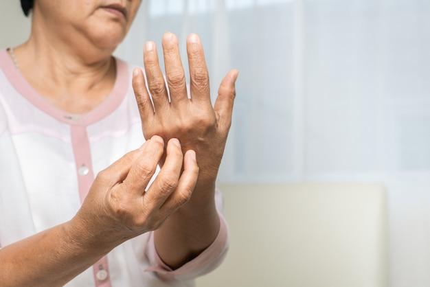 Las mujeres mayores se rascan la mano con picor en el brazo eccema, el concepto de salud y medicina