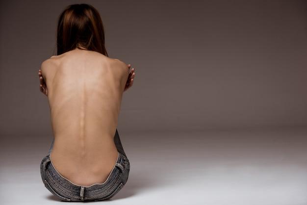Una niña con anorexia se volvió, con la columna vertebral y las costillas visibles.