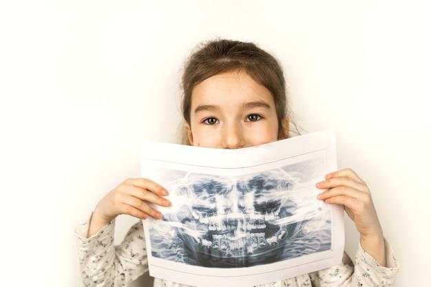 La niña sostiene su radiografía con un panorama de los dientes de leche y la segunda fila de molares reemplazables. dos filas de dientes, cambian a dientes permanentes. odontología sanitaria y pediátrica, ortodoncia.