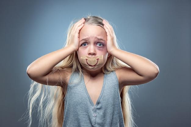 Niña triste y asustada con ojos inyectados en sangre, amoratados y sonrisa falsa en la boca. concepto de violencia infantil, abuso doméstico. deprimido siendo víctima de los padres. ilusión de infancia feliz.