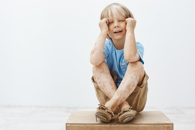 El niño quiere atención, se siente solo y molesto. retrato de niño lindo infeliz triste con cabello rubio y vitiligo, llorando o lloriqueando, sosteniendo las manos sobre la cara