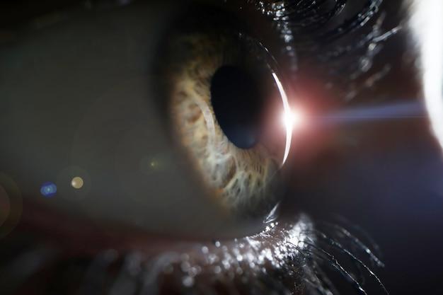 Ojo femenino en primer plano de examen de clínica de cirugía