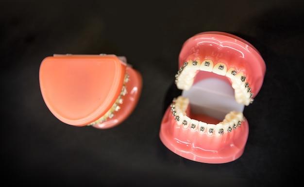 Ortodoncia, prótesis dentales closeup, fondo negro