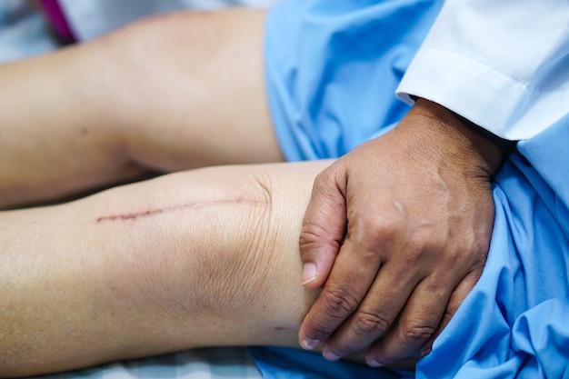 El paciente asiático de la anciana de la señora mayor muestra su reemplazo quirúrgico total de la junta de rodilla de las cicatrices.