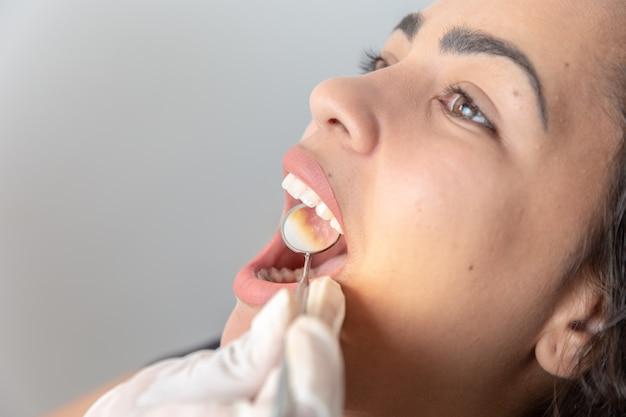 Paciente boca abierta durante el chequeo oral por el espejo del dentista. de cerca.