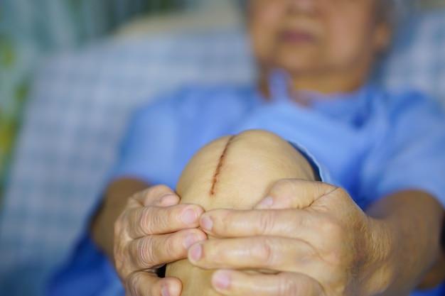 El paciente mayor asiático de la mujer mayor de la señora mayor le muestra el reemplazo total quirúrgico de la articulación de la rodilla de las cicatrices.