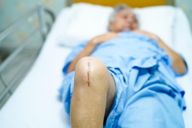 El paciente mayor asiático de la mujer mayor de la señora mayor le muestra el reemplazo total quirúrgico de la junta de rodilla de las cicatrices.