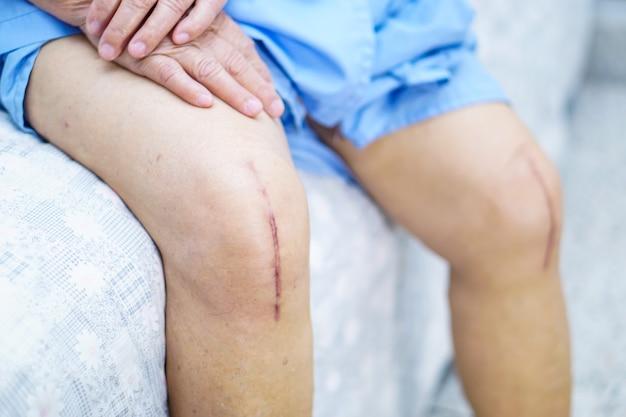 El paciente mayor asiático de la mujer mayor de la señora mayor le muestra el reemplazo total quirúrgico de las juntas de la rodilla de las cicatrices.