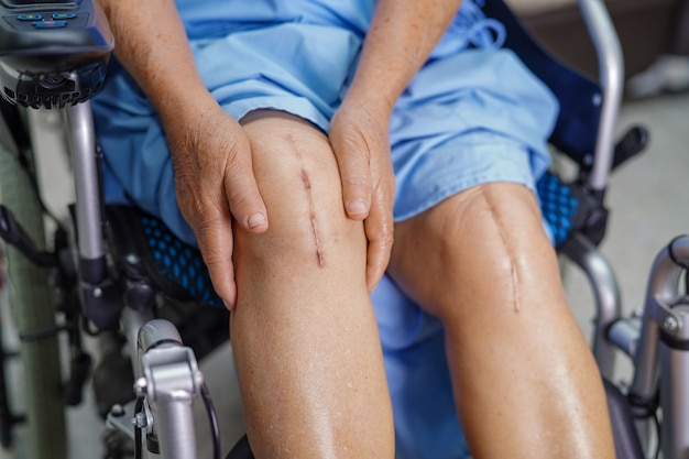 Paciente mayor o mayor de asia, anciana, mujer, muestra cicatrices quirúrgicas, reemplazo total de la articulación de la rodilla