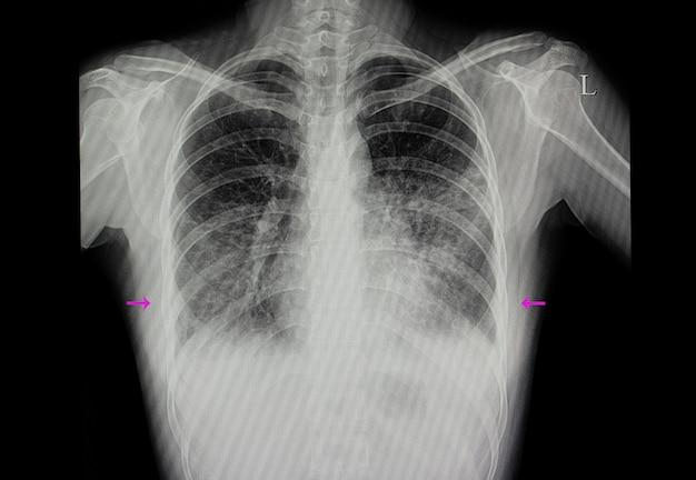 Paciente con neumonía en ambos pulmones.