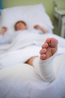 Paciente con pierna rota en yeso