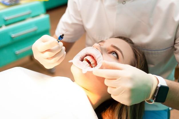 El paciente con retractor de mejillas se acuesta en la silla dental durante el procedimiento de blanqueamiento dental