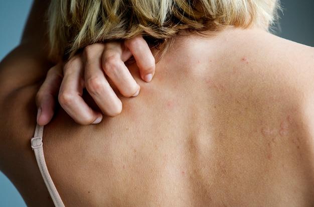 Parte trasera del concepto de dolor y dolor de espalda mujer blanca