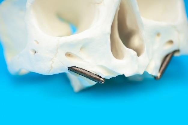 Patrón de cráneo médico con alfileres de dientes falsos sobre fondo azul.