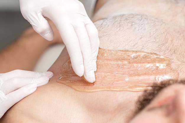Pecho de depilación de hombre joven con pasta de cera líquida por manos de cosmetóloga en salón de belleza