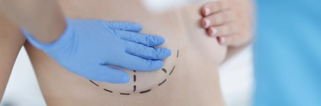 Pecho de mujer sexy desnuda con marcas negras para cirugía de aumento de senos