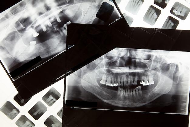 Película dental de rayos x para el concepto de cuidado dental
