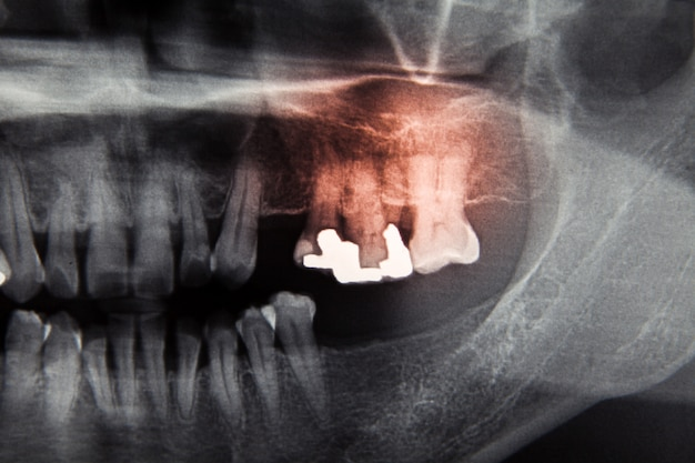 Película dental de rayos x para el cuidado dental