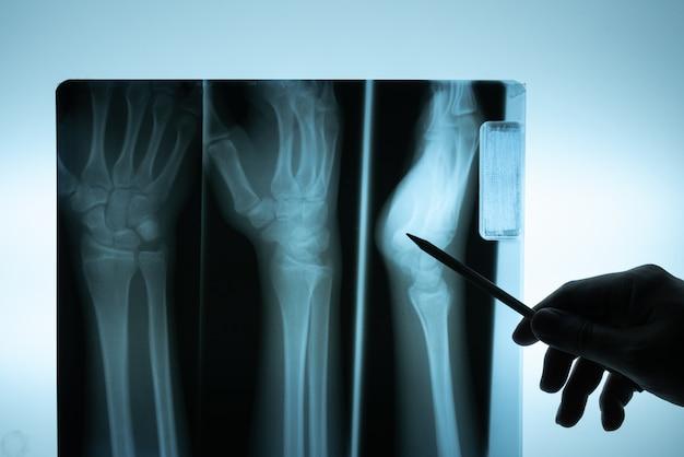 Película de rayos x con la mano del doctor para examinar.