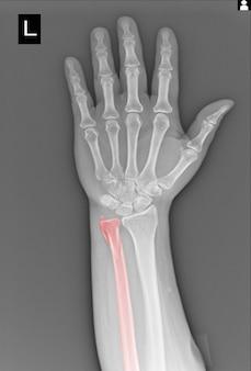 Película de rayos x mano fractura de cúbito.