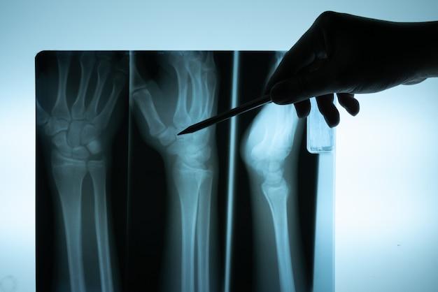 Película de rayos x con la mano del médico para examinar