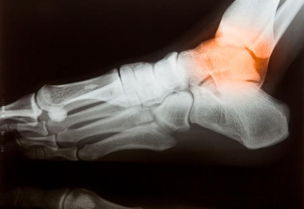 Película de rayos x para manos y piernas humanas.