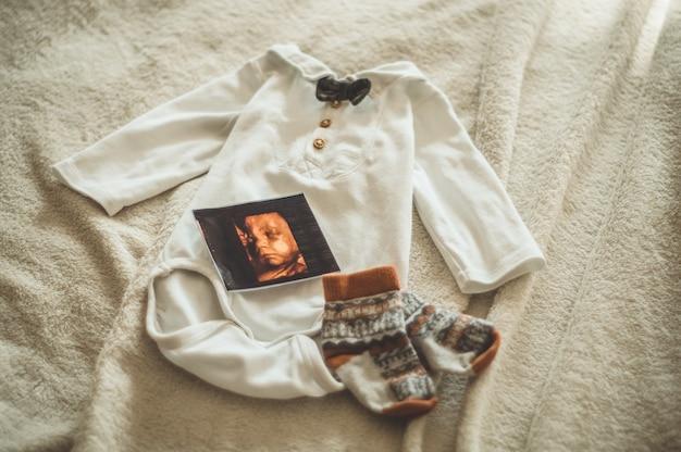 Pequeña ropa de bebé hecha a mano. foto de ultrasonido. ropa de recién nacido. unidad, protección y felicidad
