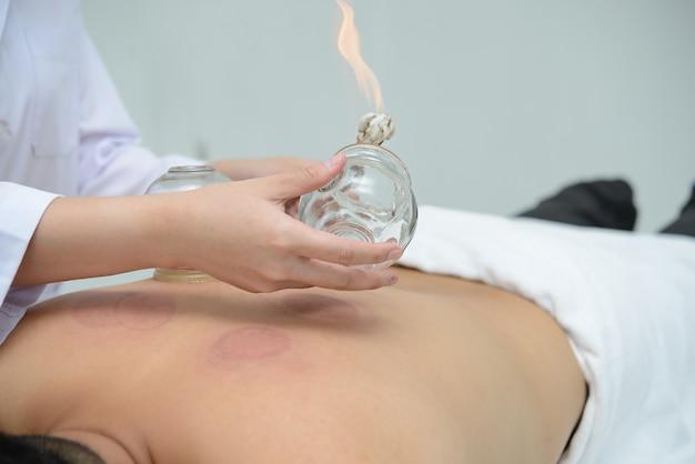 Una persona que recibe tratamiento de ventosas en la espalda en el spa, el tratamiento de la medicina tradicional china.