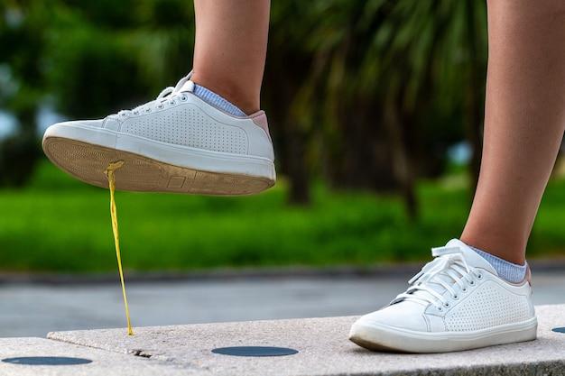 Un pie atrapado en un chicle en la calle durante un paseo por la ciudad. concepto de pegajosidad