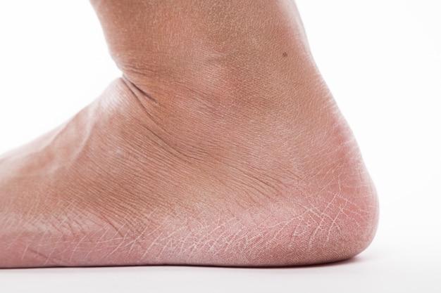 Piel deshidratada en los talones de los pies femeninos.