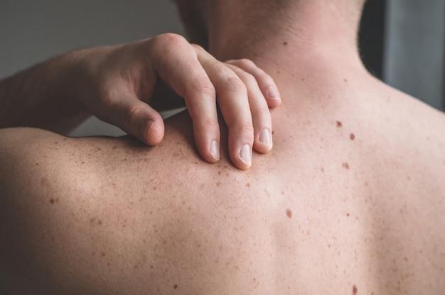 Piel desnuda en la espalda de un hombre con lunares y pecas dispersos