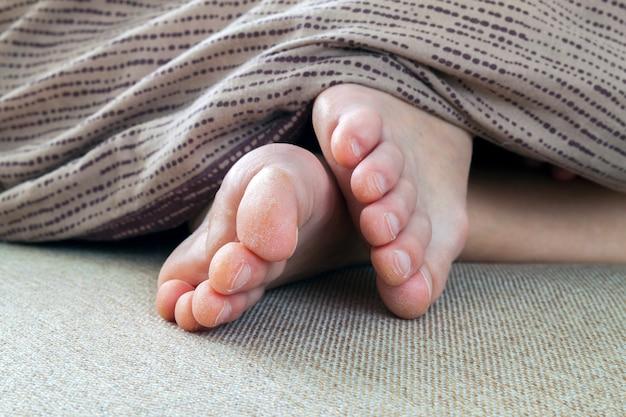 Piel seca y agrietada de pies de mujer en la cama. tratamiento de pies.