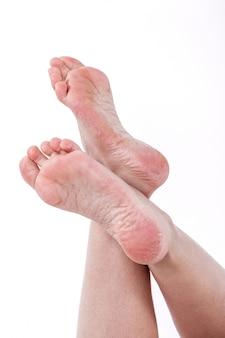 Piel seca y deshidratada en los talones de los pies femeninos con callos.