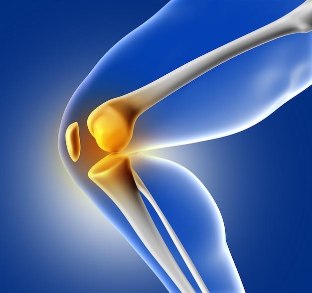 Pierna con dolor en la rodilla