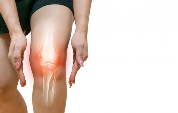 Pierna humana osteoartritis inflamación de las articulaciones óseas