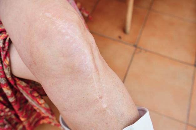 Pierna de mujer adulta con cicatriz debido a una cirugía de rodilla - concepto de salud y medicina
