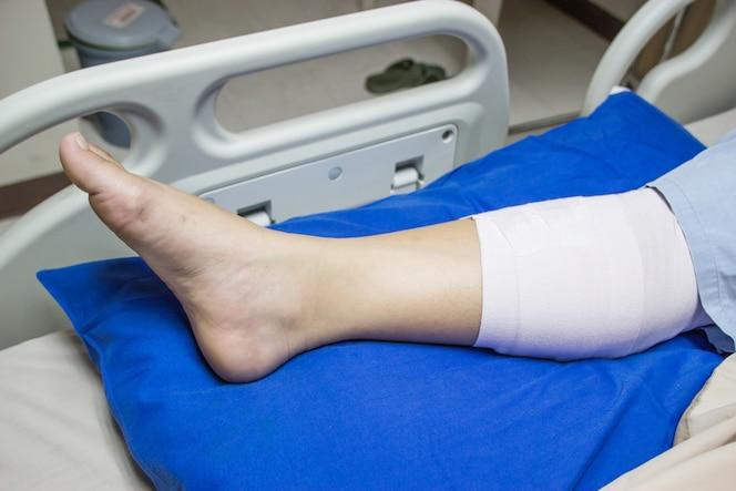 Pierna vendada en una cama de hospital