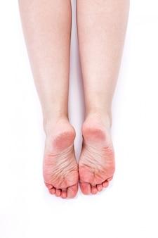 Piernas femeninas con piel seca deshidratada sobre tacones closeup
