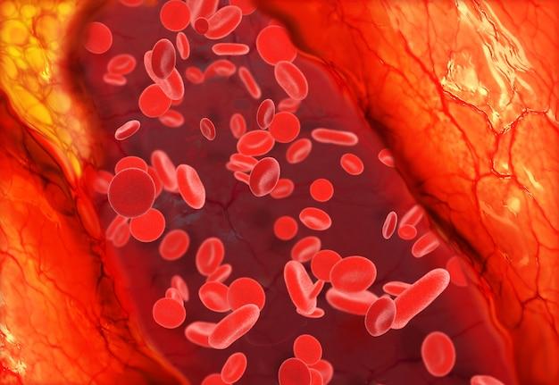 Placa de colesterol en los vasos sanguíneos.