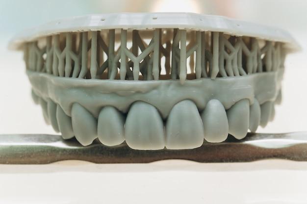 Placa de dientes de porcelana de circonio en la tienda del dentista. cuidado de la salud dental