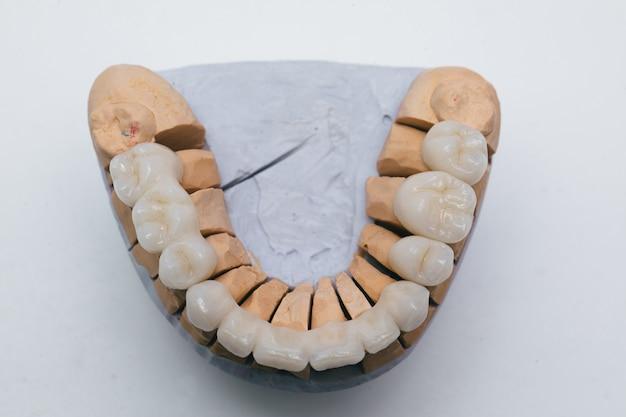 Placa de dientes de porcelana de circonio en la tienda del dentista. puente cerámico sobre yeso modelo.