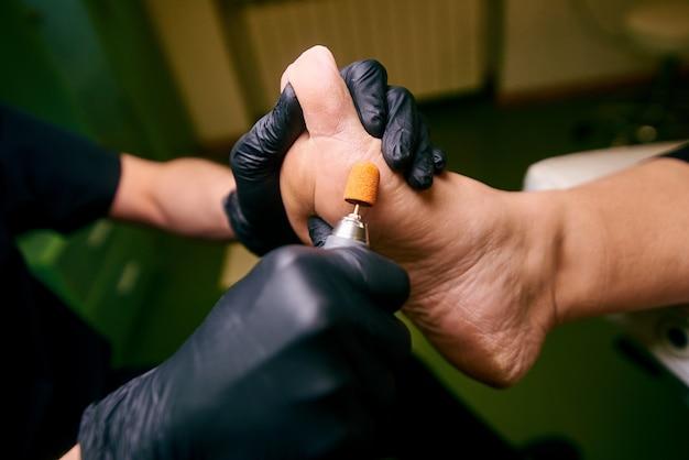 Podología, tratamiento de las áreas afectadas de los pies, consultorio médico, pedicura, piel dañada.