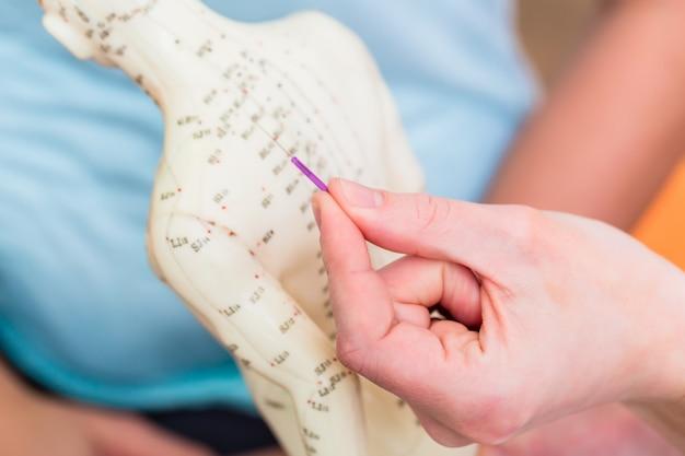 Practicante alternativo explicando la acupuntura.