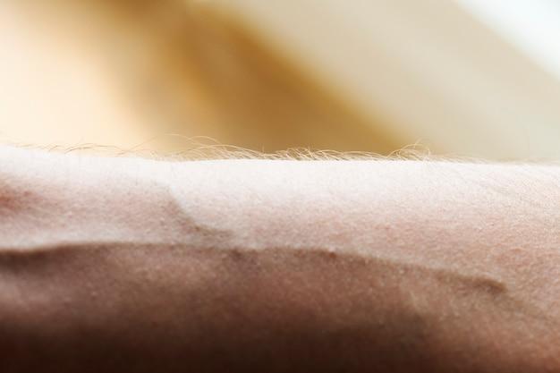 Primer plano de un brazo y una vena humanos