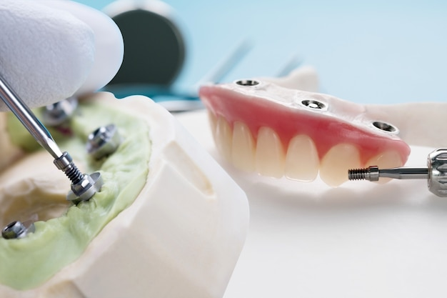 Primer plano / componentes del pilar convertible / pilar provisional de implante dental / implante de tornillo de pilar.