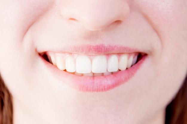 Primer plano de dientes blancos sanos de mujer sonriente mujer