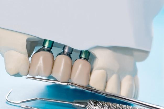 Primer plano implante modelo diente soporte fijación puente implante y corona.