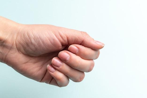 Primer plano de una mano femenina caucásica con uñas naturales sin pulir, cutícula demasiado crecida sobre un fondo blanco, vista superior, espacio de copia. concepto de uñas naturales, uñas crudas