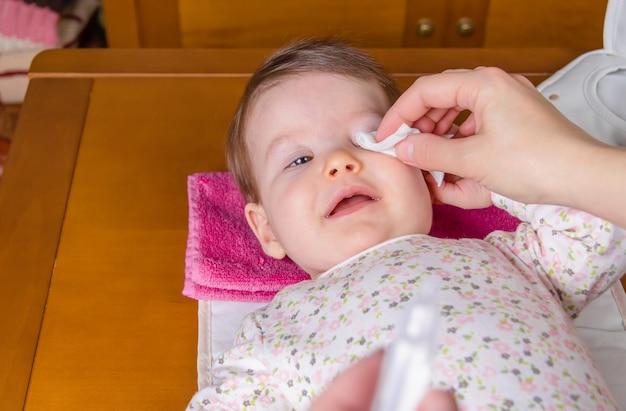 Primer plano de las manos de la madre limpiando los ojos del bebé con suero fisiológico en un algodón