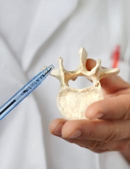 Primer plano de un modelo de vértebra humana en la mano de un profesional de la salud